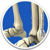 Fracture and Trauma - Orthopaedic Surgical Specialist