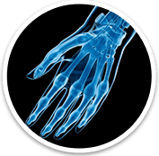 Hand And Wrist - Orthopaedic Surgical Specialist