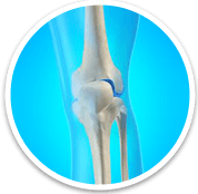 Knee - Orthopaedic Surgical Specialist