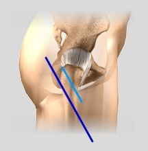 Minimally Knee Replacement